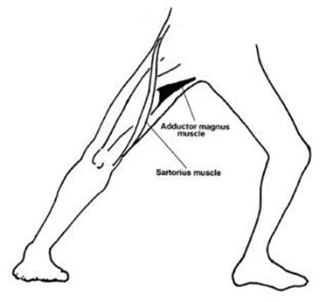 pulled groin diagram groin strain