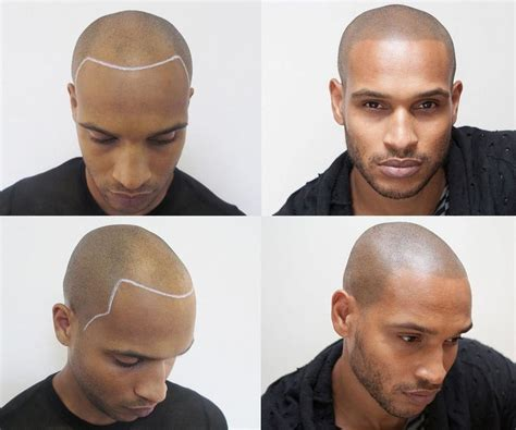 hairline tattoo guys are tattooing hair onto their bald heads gq