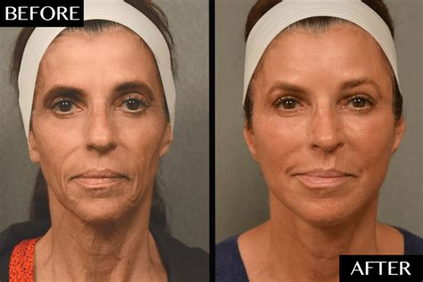 Next Facelift For Your Teeth 2 by Grafting Facelift Cosmetic Treatments Dailybeauty