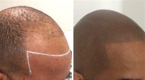 Scalp Micropigmentation To Make Hair Ticker Pictures | scalp micropigmentation to make hair ticker pictures