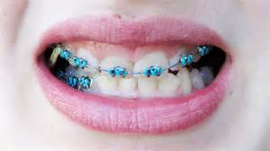 best color for girls the gallery for gt cool braces colors ideas for girls