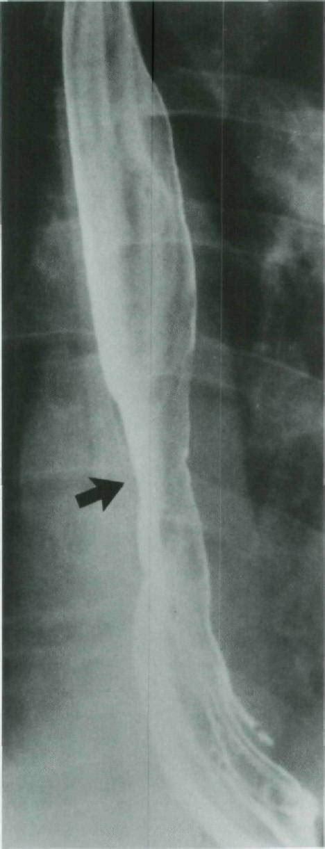radiologic appearance  barretts esophagus distinguishable    severe reflux