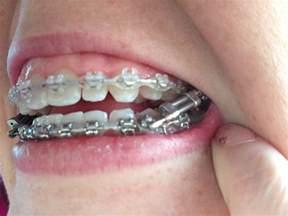 braces rubber bands colors braces rubber band colors newhairstylesformen2014