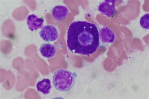 mast cells in dogs a day at the vet skin cancer fromthelabbench