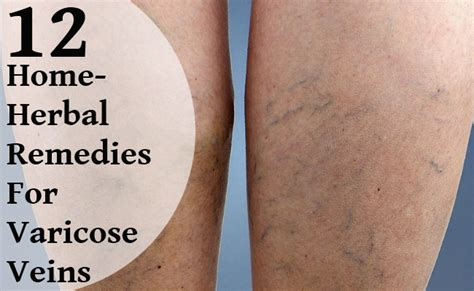 top 12 home herbal remedies for varicose veins care