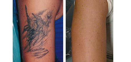 tattoo removal long island laser plus spa island s top laser spa