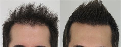 advances in hair cloning august 2016 yed sg