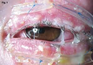 American Dry Basement - amniotic membrane for acute stevens johnson syndrome american academy of ophthalmology