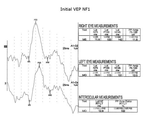 normal pattern vep visually evoked potentials by donnell j creel webvision