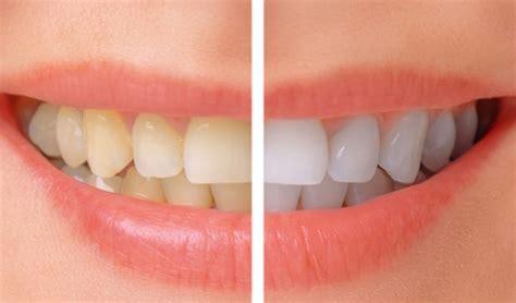 teeth whitening temple square dental