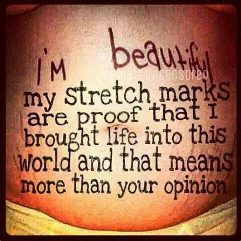 Stretch Marks Meme - 41 best images about yep stretch marks on pinterest