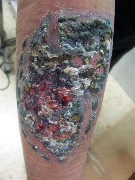 tattoo infection video facebook worst tattoo infection ive ever seen now that s ugly