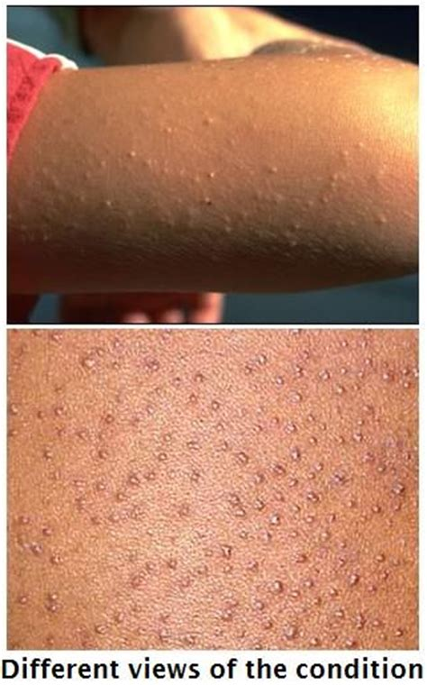 about keratosis pilaris home remedies keratosis pilaris