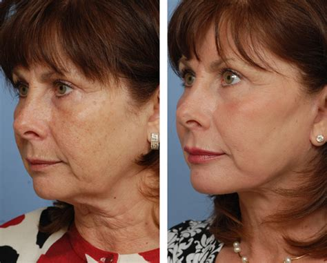 hairstyles for an aging face with jowls the neck cream authority neckcream org