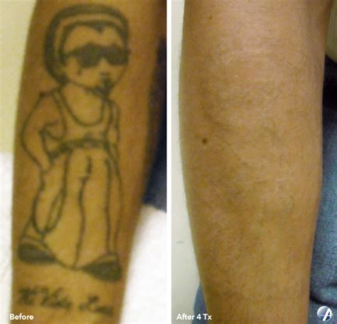 tattoo removal michigan before and after results arbor laser removal