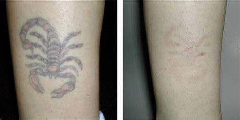 laser tattoo removal new york laser removal new york naturalase qs nyc