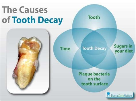dental testimonials cure tooth decay the cause of teeth decay