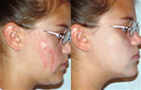 camo face tattoo scar concealing makeup scar makeup cover up concealer