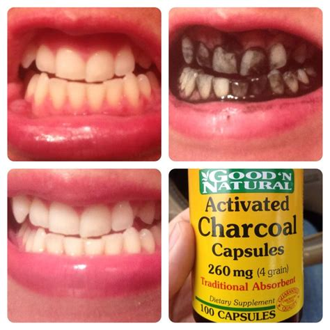 results       activated charcoal