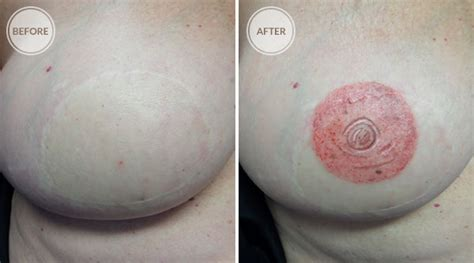 nipple tattoo before after 3d areola reconstruction spokane permanent cosmetics