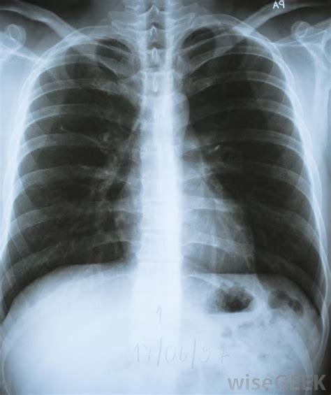 lump on s chest image gallery sternum lump
