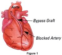 blocked arteries and open surgery traditional vs beating coronary artery bypass