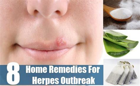 herpes outbreak home remedies treatments and curs