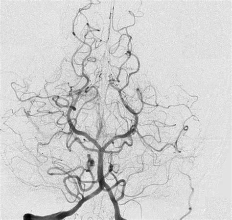 angiografia cerebral hci hemodin 226 mica e cardiologia invasiva ver tecnica