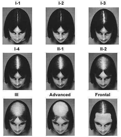 hair pattern test world hair research 187 hair loss scale