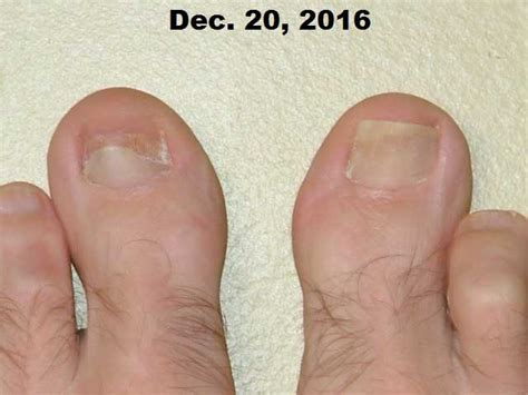 nail detached from nail bed vitamin c dhaa serum applied to toenail fungus case study