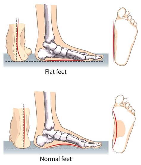 flat foot treatment shoes what causes flat and what to do if you suffer from it
