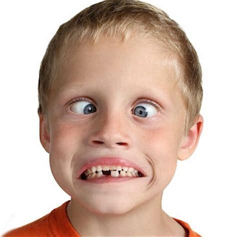 cross eyed kid goes cross eyed gets stuck that way glossynews glossynews