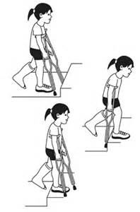 How To Walk Up The Stairs With Crutches by Walking With Crutches On Stairs F F Info 2017
