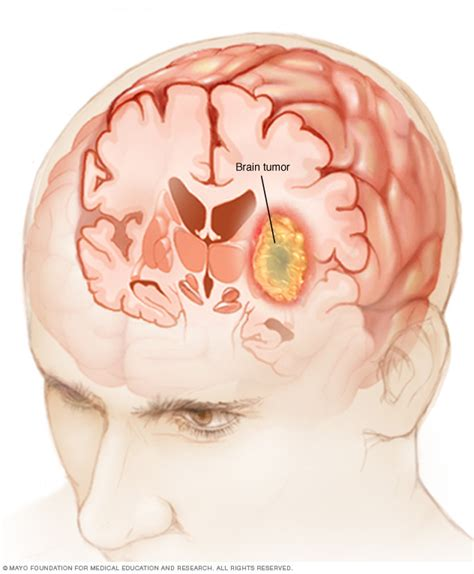 tumor pictures overview brain tumor mayo clinic