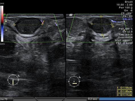 ultraschall innen schwangerschaft brustultraschall vaginalultraschall dr med m bulgay