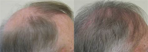how is loop hair transplant done before and after ziering whorl transplant results