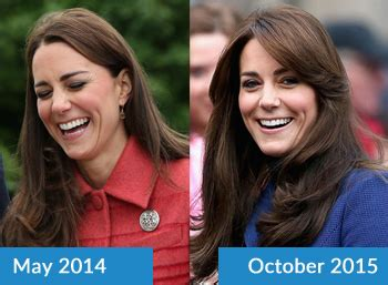 does kate duchess of cambridge wear hair extensions