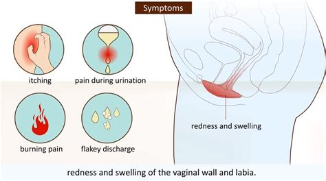 yeast infection symptoms yeast infection what is it how to avoid it vagifirm herbal