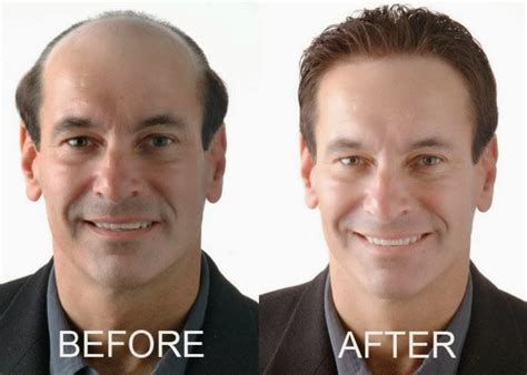europa sintheric hair transplant hair transplant abroad