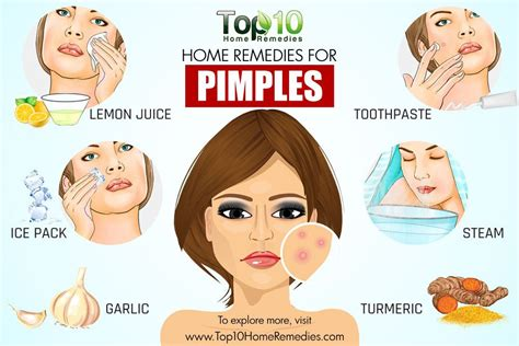 How To Treat A Blind Pimple Home Remedies For Pimples Top 10 Home Remedies