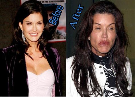 30 insane celeb beach photos 30 celebrities who had plastic surgery gone wrong wtf