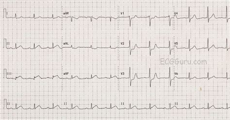 latex datatool tutorial 12 lead ekg mi pictures to pin on pinterest pinsdaddy