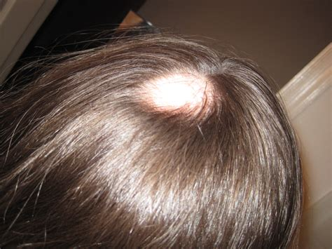 zzcover bald spot in the middle of hair bald spots on head thinning hair and alopecia areata