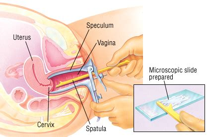 white stuff coming out of pussy vaginal discharge guide causes symptoms and treatment
