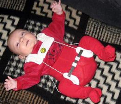unruhiger schlaf baby h 252 ftgelenksfehlbildung h 252 ftdysplasie babywelten ch
