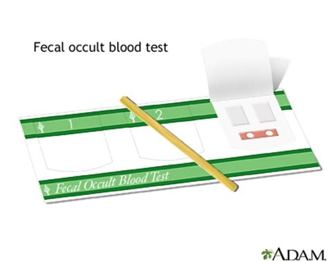 Occult Blood Test In Stool by Fecal Occult Blood Test Medlineplus Encyclopedia