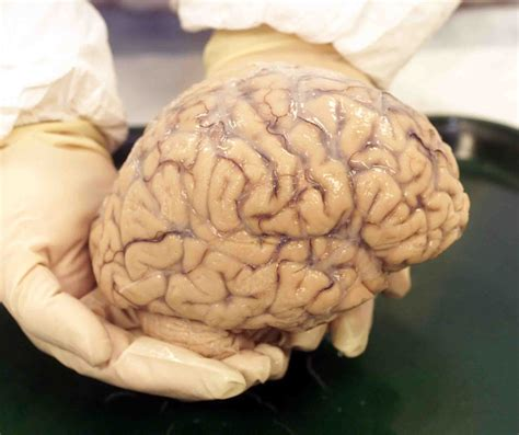 re brains wanted your healthy brain when you re done with it