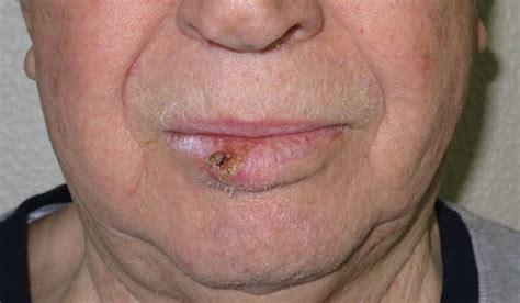 gonfiore interno bocca carcinoma squamocellulare sintomi rischi e terapie
