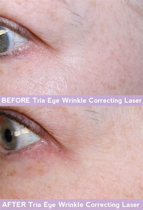 tria age defying laser before and after photos tria age defying eye wrinkle correcting laser review