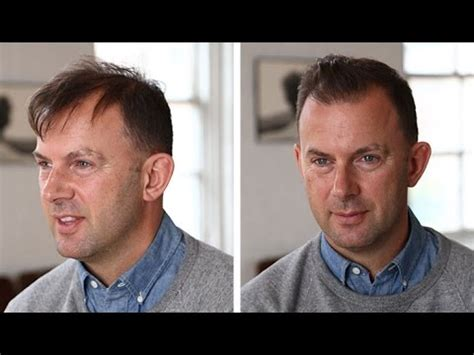 real people with fine balding hair men s hairstyle tutorial thin or thinning hair youtube